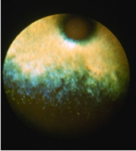 Severe case: atrophy of entire retina