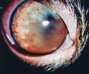 severe-anterior-uveitis